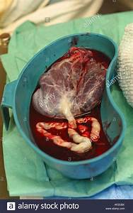 Placenta After Birth in a bowl in a Hospital Delivery Room ...