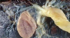 Fetal Side Of The Placenta From Latin American Pregnant
