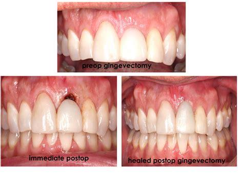 gingivectomy kernersville cosmetic gum surgery bermuda run