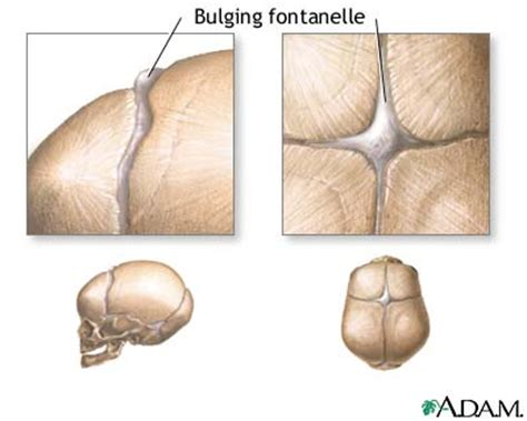 Fontanelles  Bulging Causes, Symptoms, Treatment. Removable Wall Art. Football Club Logo. Surf Brand Stickers. Negative Signs. Joy To World Lettering. Truck Tailgate Decals. Neurology Signs. Anterior Communicating Artery Signs Of Stroke