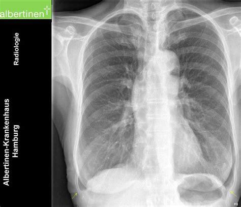 radio du thorax emphyseme pa doccheck pictures