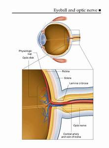 Glaucoma Nz