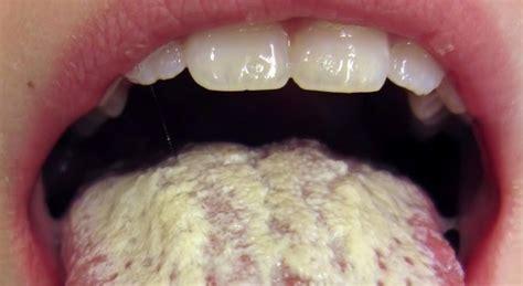 fungos na pele como identificar  tratar medico responde