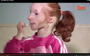 Smallest Girl In The World Charlotte Garside Lives Like ...