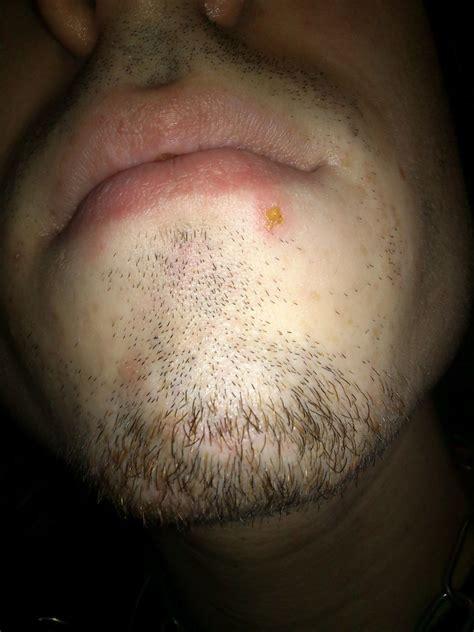 Yellow Scab On Lip Lipsviewsorg
