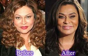 Tina Knowles Plastic Surgery - Intended Look?