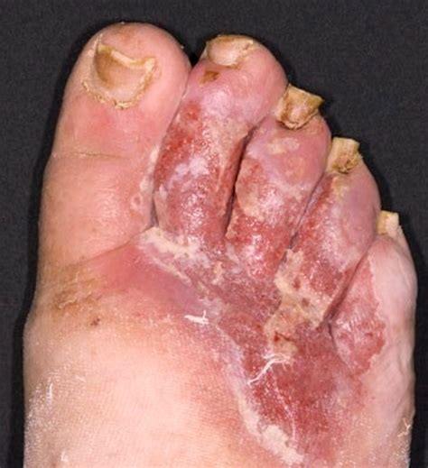 Blood Clot Symptoms In Leg tendernessco
