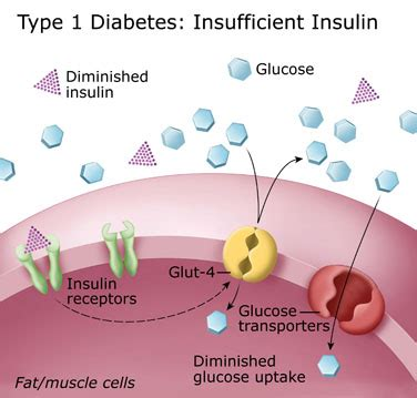 biochemistry class notes type  diabetes mellitus