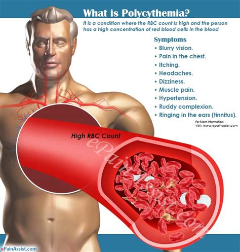 Polycythemiatypescausessymptomstreatmentcomplications. Emergency Dental Offices Trade Schools In Nyc. Tennessee Orthopaedic Clinics. Arlington Baptist College Marine Tech Schools. Psychology Courses Ucsd Forensic Science Tech. Corporate Awards Plaques Protech Pest Control. Best Colleges In Usa For Business. Cheap Insurance For Cars Tele Conference Call. Most Expensive Canon Dslr Uric Acid Vitamin C