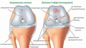 Современное лечение артроз коленного сустава