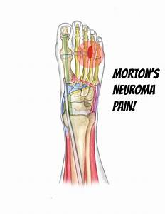 Mortons Neuroma - American Foot & Ankle Center