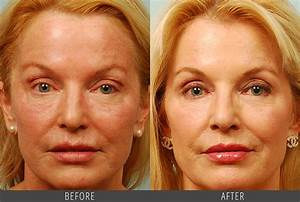 Vivace RF Microneedling Before and After Pictures in