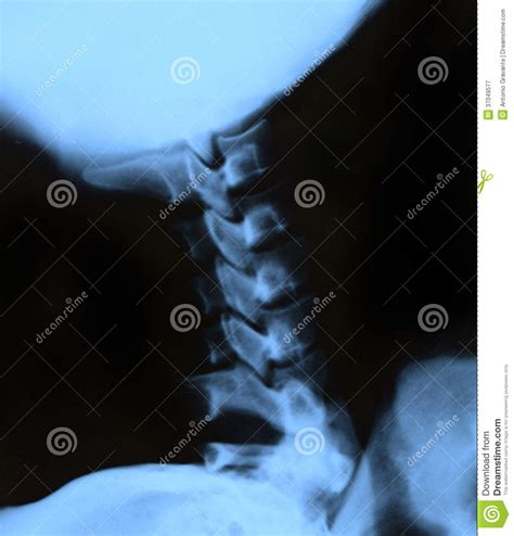 neck ray scan cervical