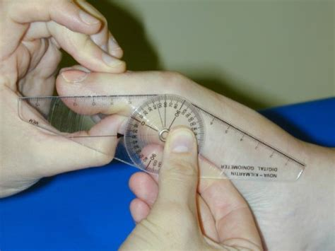 figure 4 combined rotation scarf and akin osteotomies for hallux valgus a patient focussed 9