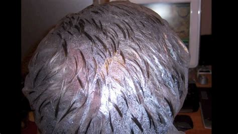 How To Get Rid Of Lice Eggs And Nits