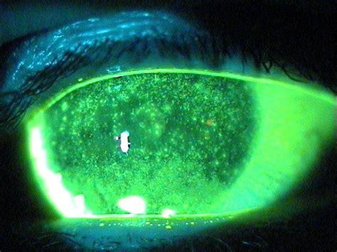 punctate keratitis american academy  ophthalmology