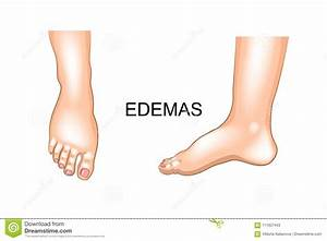 Edema Cartoons  Illustrations  U0026 Vector Stock Images