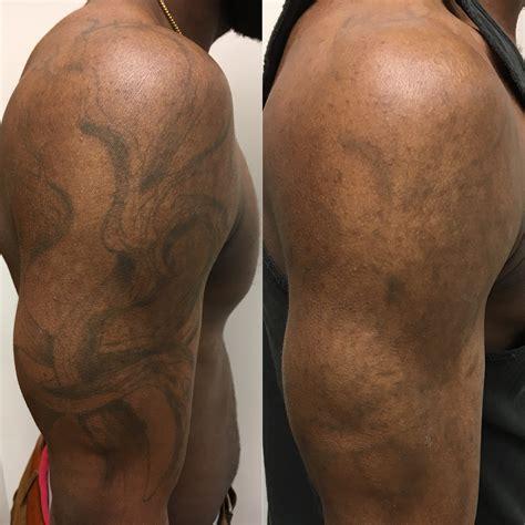 tattoo removal     tattoo ideas