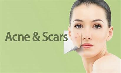 Scars Botox Forever Young Acne Fillers