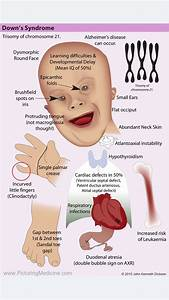 Down U0026 39 S Syndrome  Are You Aware Of All The Features Of This Common Syndrome  Can You Recall Them