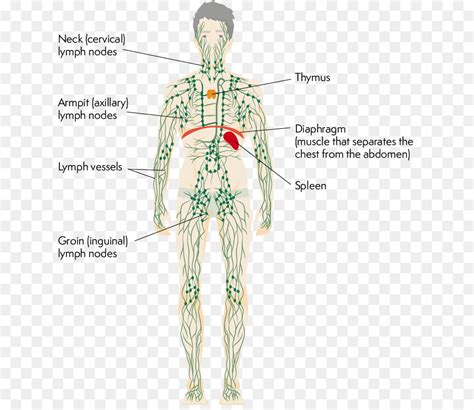 Calcified Axillary Lymph Nodes