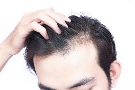 Cause Hair by Vitamin D Deficiency Hair Loss Symptoms And Treatment