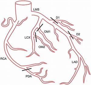 Coronary Tree Segments And Their Grouping During