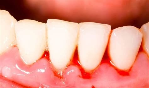 How To Get Rid Of Gingivitis Causes Symptoms And Treatment