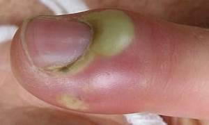 Acute Paronychia, causes, symptoms, treatment - WELFARE JAMBO
