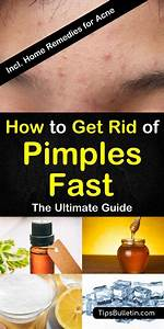 8 Great Home Remedies To Get Rid Of Pimples Fast In 2020