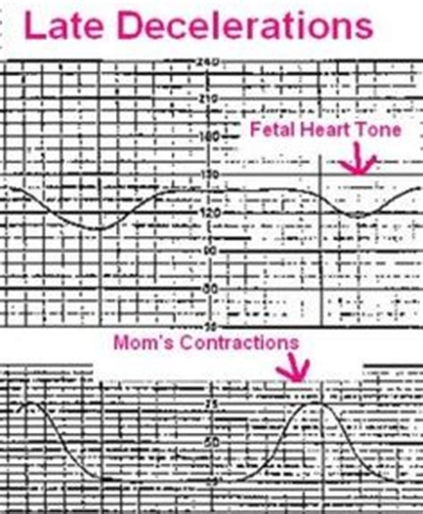 veal chop acronym for electronic fetal monitoring interpretation learn this to remember