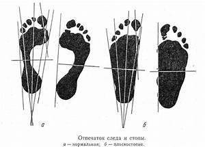 Флуконазол как пить от грибка ногтей на ногах