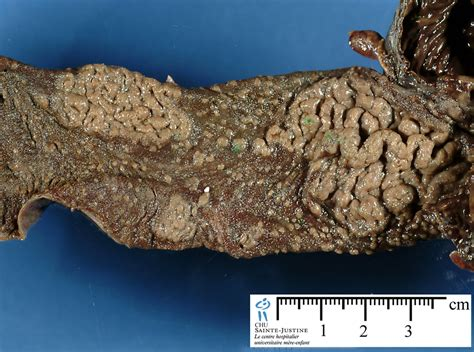 digestive ischemic necrosis humpathcom human pathology