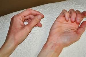 Кожные заболевания у людей лечение псориаза