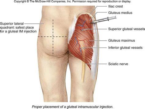 testosterone propionate injection soreness