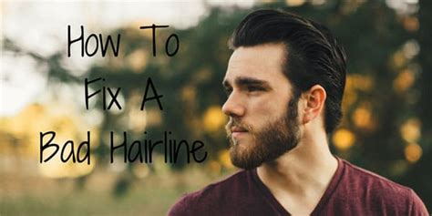 How To Fix A Bad Hairline  Growing Your Hairline Back. Bankruptcy Attorneys In Baton Rouge. Online Store For My Website Lg Phones Specs. Skid Steer Loaders For Sale In Pa. Out Of State Moving Company Irs Levy Notice. Southwestern Community College Chula Vista. Applied Behavior Analysis Courses Online. Hope Community Resources Sharepoint. Breckenridge Theater Little Rock Ar