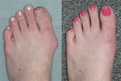 Surgery Foot Before Laser Bunion Heel Spur