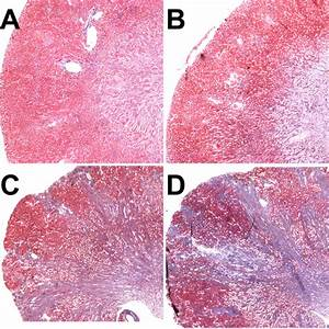 Chronic Scarring Following Acute Kidney Injury  Central