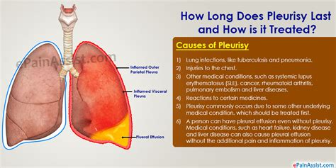How Long Does Pleurisy Last And How Is It Treated?. I Can T Pay My Credit Card Bills. Barnett Heating And Air Lowest Mortgage Rates. Phd In Education Administration. Mining Stocks With Dividends. Maryland Vehicle Emissions Inspection. Human Resource Management Courses Online. Office Of Emergency Management. Cost Of Homeowners Insurance In Florida