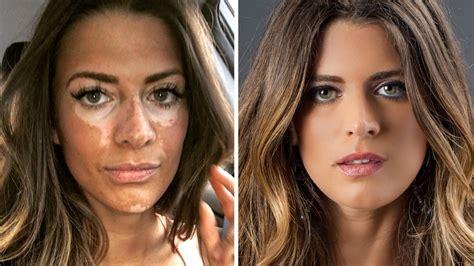 Model Breanne Rice reveals vitiligo condition in powerful
