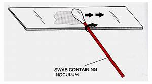 Preparing A Bacterial Smear Using A Swab