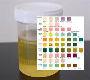 UTI Infection Urine Color