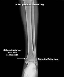 Fractured Bone In Foot