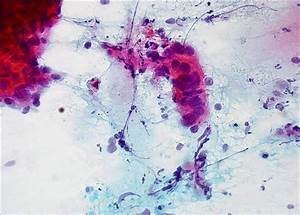 Pap Corse : c lulas glandulares at picas eurocytology ~ Gottalentnigeria.com Avis de Voitures