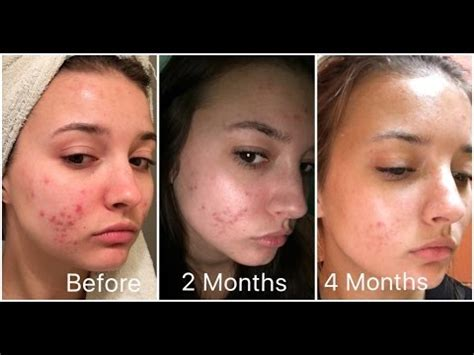 Retin-A 4 Month Skin Update (Acne) | jennybeYOUty - YouTube