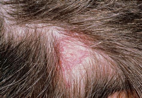 tinea capitis ringworm   scalp lesion stock