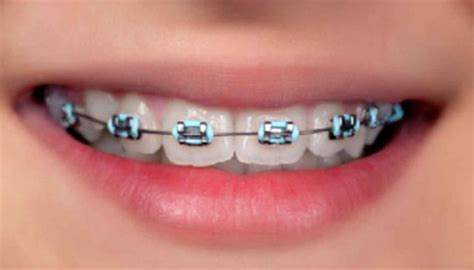 braces colors that make teeth look whiter 6 preguntas sobre brackets la voz interior