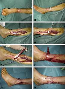 Distally based peroneus brevis muscle flap in ...