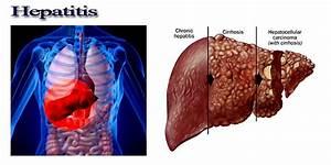 Spiritual and P... Hepatitis