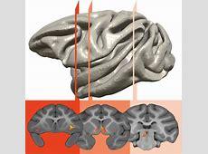 Brain imaging shows how children inherit their parents
